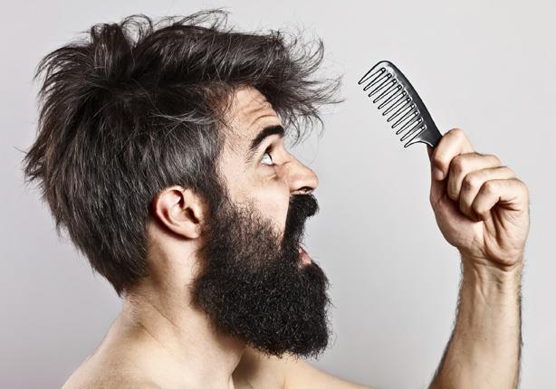 صوره علاج تساقط الشعر للرجال , الصلع الوراثى الاسباب والعلاج