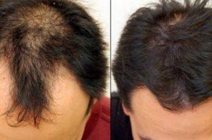 صورة علاج تساقط الشعر للرجال , الصلع الوراثى الاسباب والعلاج