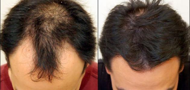 صور علاج تساقط الشعر للرجال , الصلع الوراثى الاسباب والعلاج