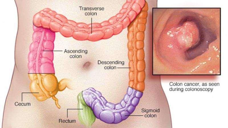 بالصور اعراض سرطان القولون , السرطان مرض خطير يهدد حياة الجميع 1746 1