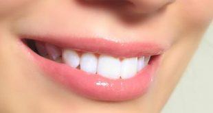 صوره كيفية تبييض الاسنان , تبييض الاسنان طبيعيا