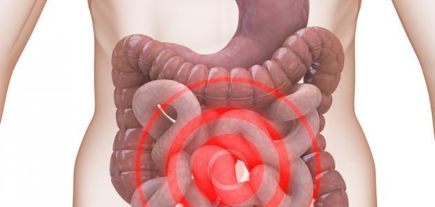 صورة القولون العصبي , اعراض القولون العصبي