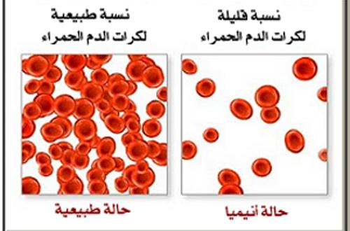 بالصور مرض فقر الدم , اعراض فقر الدم 2518