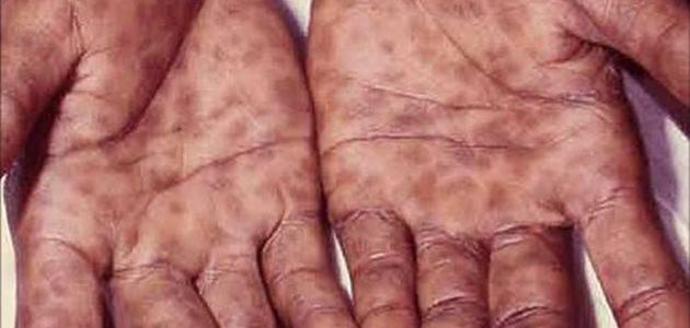 صور مرض الزهري , كل ما لا تعرفه عن مرض الزهري