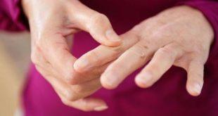 صوره علاج الروماتيزم , طريقة لعلاج الروماتيزم