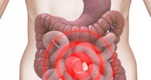 صور اعراض القولون العصبي , ما لا تعرفه عن متلازمة القولون