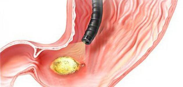 بالصور اعراض جرثومة المعدة , مسببات الميكروب الحلزونى ومؤشراته 2976 2