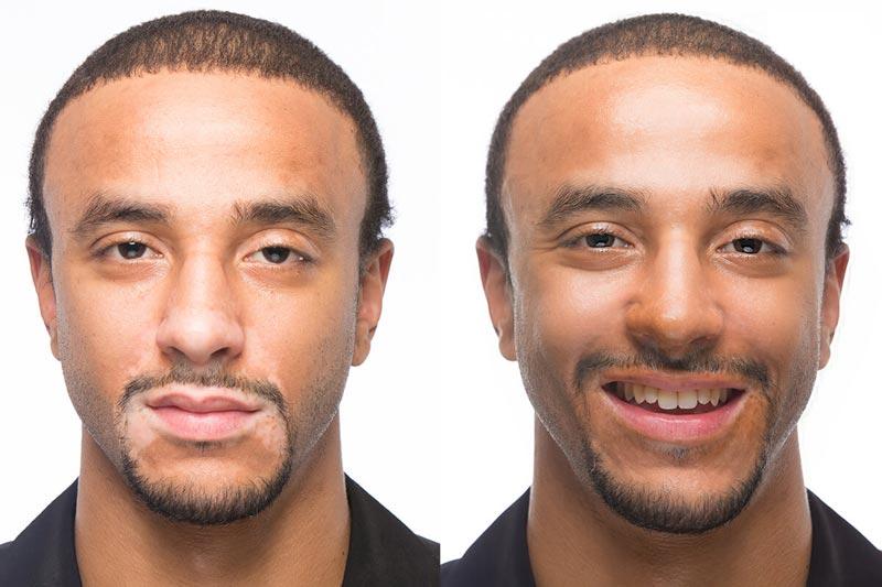 صوره علاج البهاق , كيف يتم علاج اختلاف لون الجلد