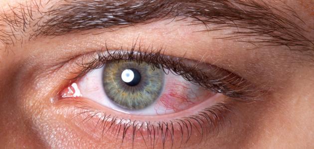 بالصور علاج الرمد , كيفية علاج مرض رمد العين 3669 1