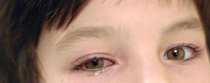 بالصور علاج الرمد , كيفية علاج مرض رمد العين 3669 2