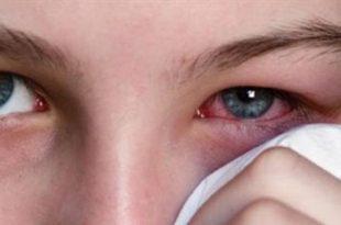 صوره علاج الرمد , كيفية علاج مرض رمد العين