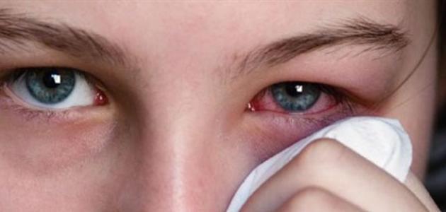 بالصور علاج الرمد , كيفية علاج مرض رمد العين 3669