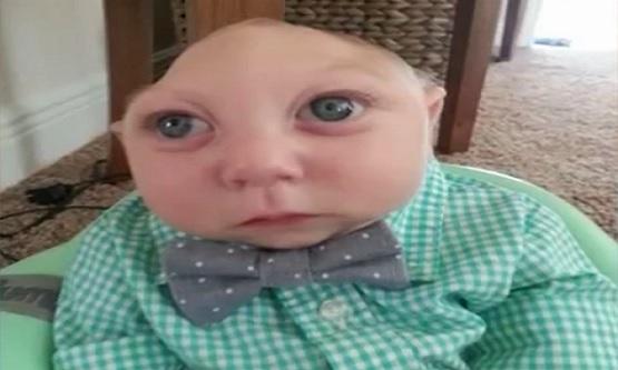 صورة الطفل المعجزة , جاكسون بويل الطفل المعجزة 3707 2