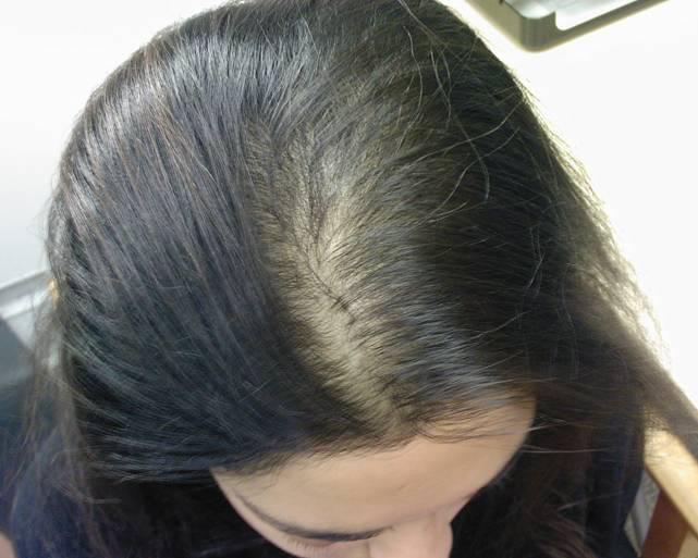 بالصور شعري خفيف , معلومات عن الشعر الخفيف اسبابه و علاجه 3808 2