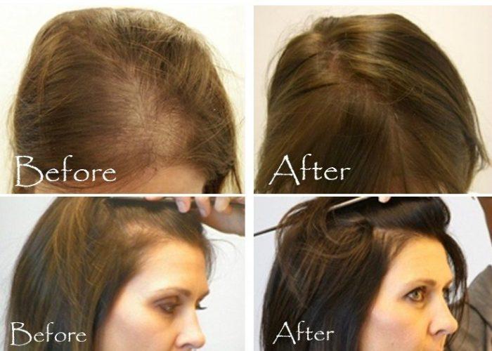 بالصور شعري خفيف , معلومات عن الشعر الخفيف اسبابه و علاجه 3808 3