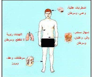 بالصور اعراض الايدز , تعرف على اهم اعراض مرض الايدز 3893 2 397x330