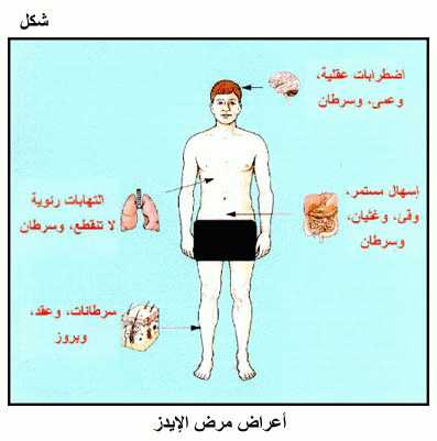 بالصور اعراض الايدز , تعرف على اهم اعراض مرض الايدز 3893
