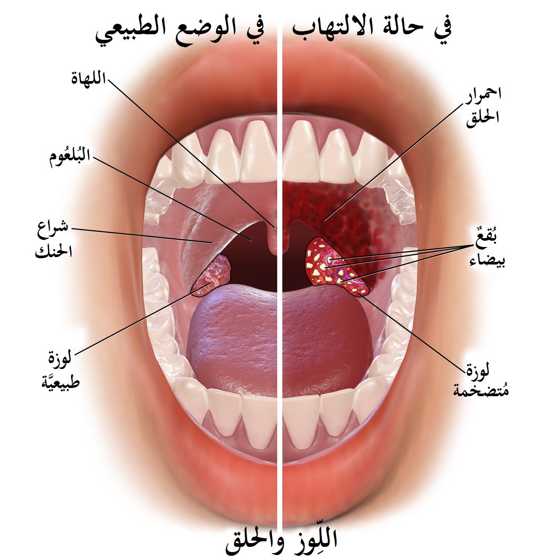 صوره علاج التهاب الحلق , كيفية علاج التهاب الحلق