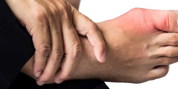 بالصور علاج النقرس , تعرف على كيفية علاج مرض النقرس 3973 1