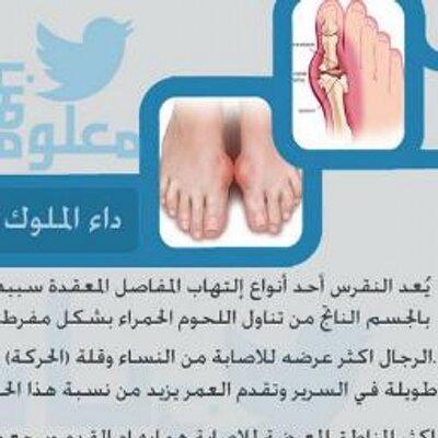 بالصور علاج النقرس , تعرف على كيفية علاج مرض النقرس