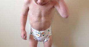 صوره علاج نحافة الاطفال , تعرف على كيفية علاج نحافة الاطفال