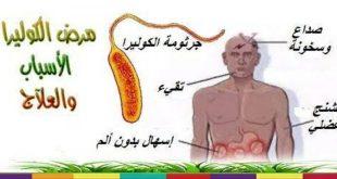 صور مرض الكوليرا , معلومات عن مرض الكوليرا
