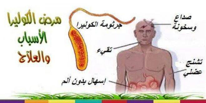 صورة مرض الكوليرا , معلومات عن مرض الكوليرا