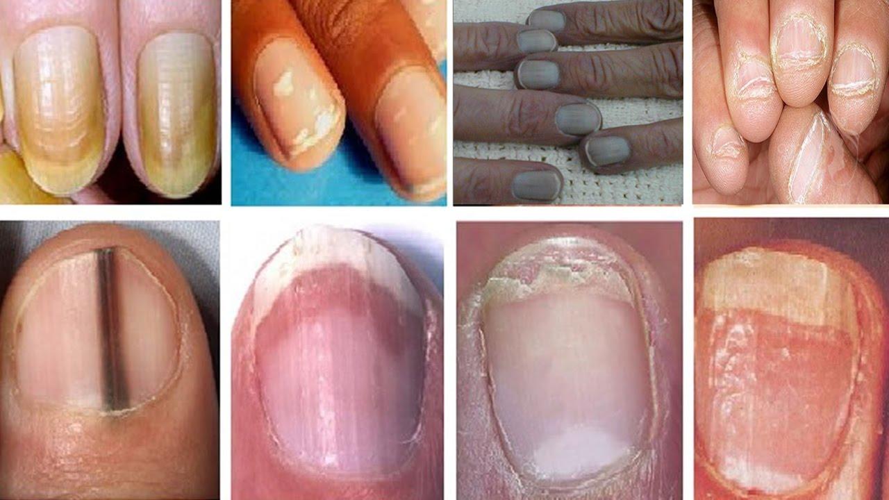 بالصور امراض الاظافر , تعرف على اخطر الامراض التى تصيب الاظافر 5167 1