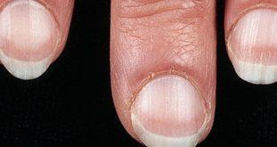 صوره امراض الاظافر , تعرف على اخطر الامراض التى تصيب الاظافر