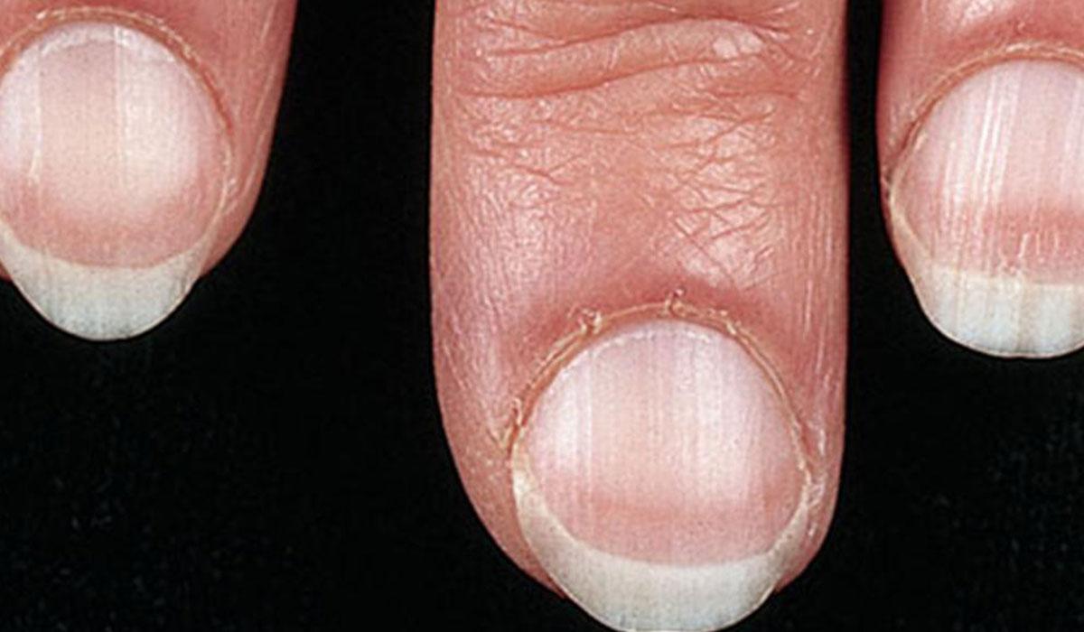 بالصور امراض الاظافر , تعرف على اخطر الامراض التى تصيب الاظافر 5167