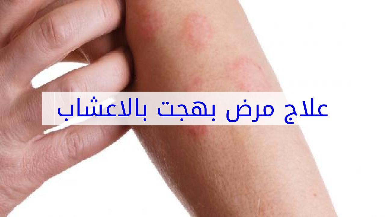 بالصور مرض بهجت , ما هو مرض بهجت وكيفية علاجة 5673 2