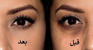 صورة الهالات السوداء تحت العين , اسرع طريقة للتخلص من الهالات السوداء