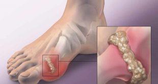 بالصور علاج التهاب المفاصل بالماء , الماء فى علاج التهاب المفاصل 10061 2 310x165