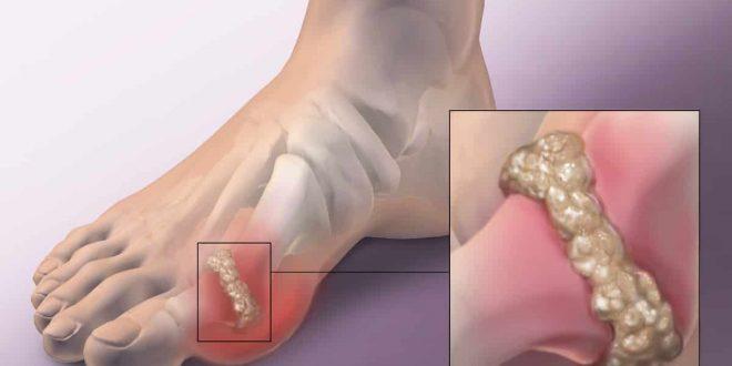 بالصور علاج التهاب المفاصل بالماء , الماء فى علاج التهاب المفاصل 10061 2 660x330