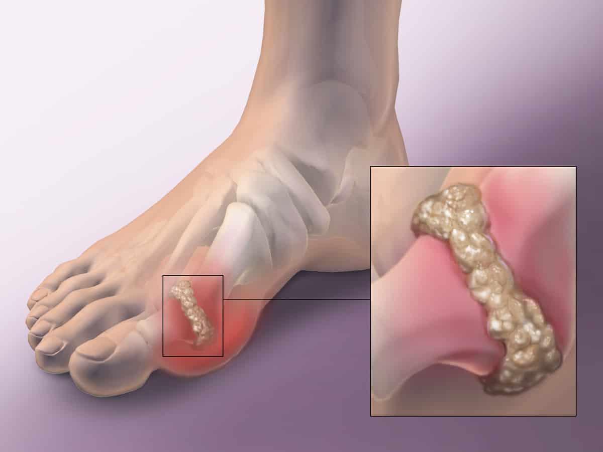 صورة علاج التهاب المفاصل بالماء , الماء فى علاج التهاب المفاصل