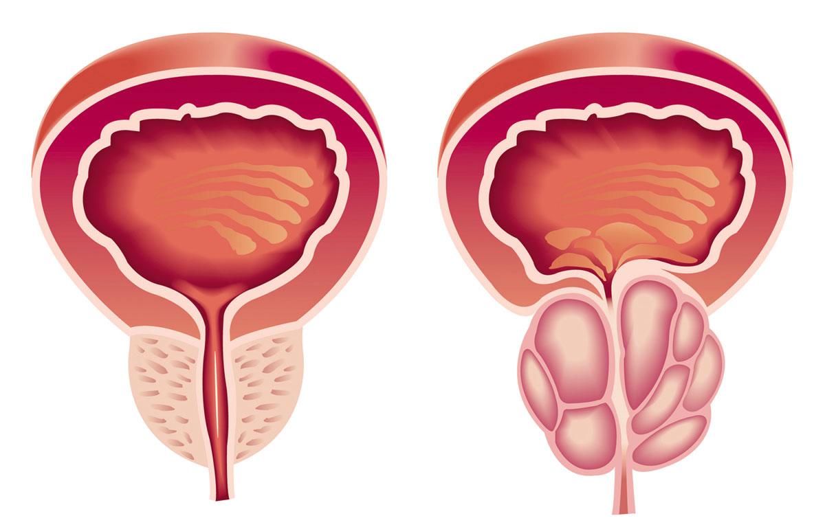 صورة علاج تضخم البروستاتا , تعالو بنا نتعرف علي طرق علاج تضخم البروستاتا