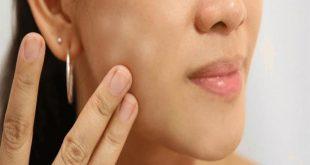صور البقع البيضاء في الوجه , التخلص من البقع في البشرة
