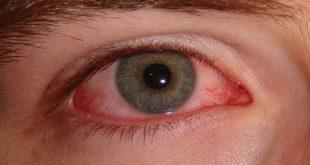 صورة العين الحمراء , معلومات وخطورة العين الحمرا
