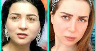 صور مي عز الدين قبل التجميل , صور مي عز الدين زمان