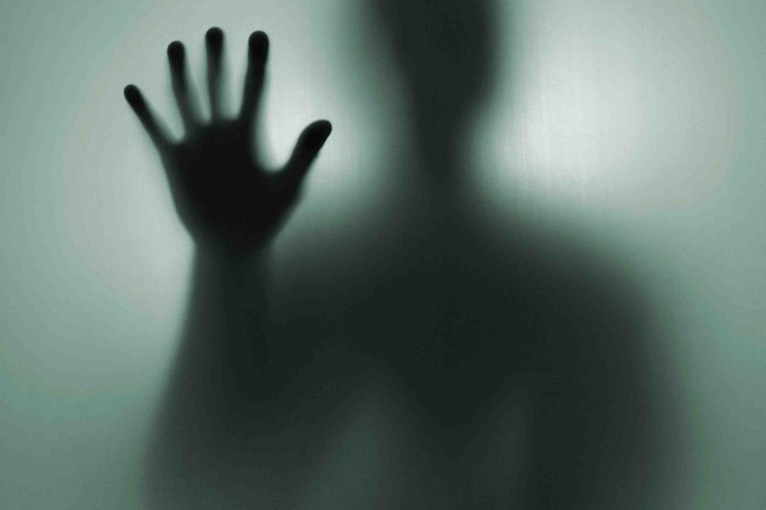 صور متلازمة اليد الغريبة , متلازمة اليد الملقوفة