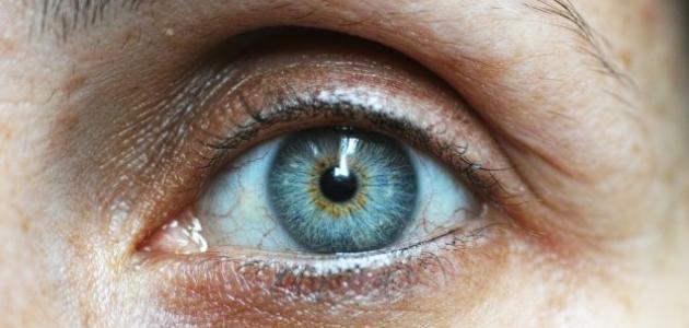 صور اسباب وجع العين , العوامل التي تؤدي الي الام العين