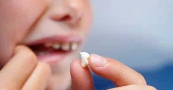 صورة تفسير سقوط الاسنان , وقوع الاسنان في الحلم