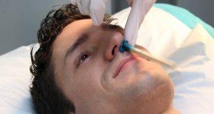صور ازالة شعر الوجه نهائيا للرجال , التخلص من الشعر عند الرجال