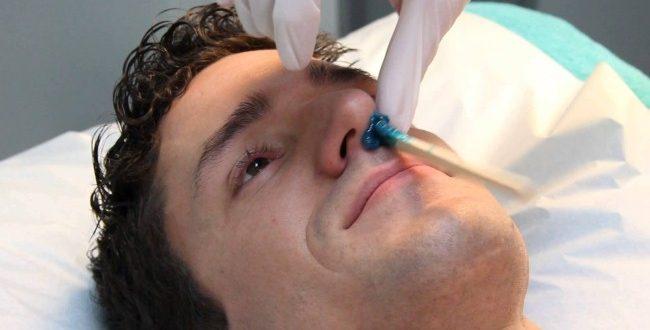 صورة ازالة شعر الوجه نهائيا للرجال , التخلص من الشعر عند الرجال