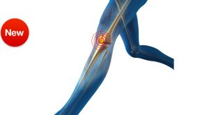 صور علاج الركبه العجيب , امراض الركبة المزمنة