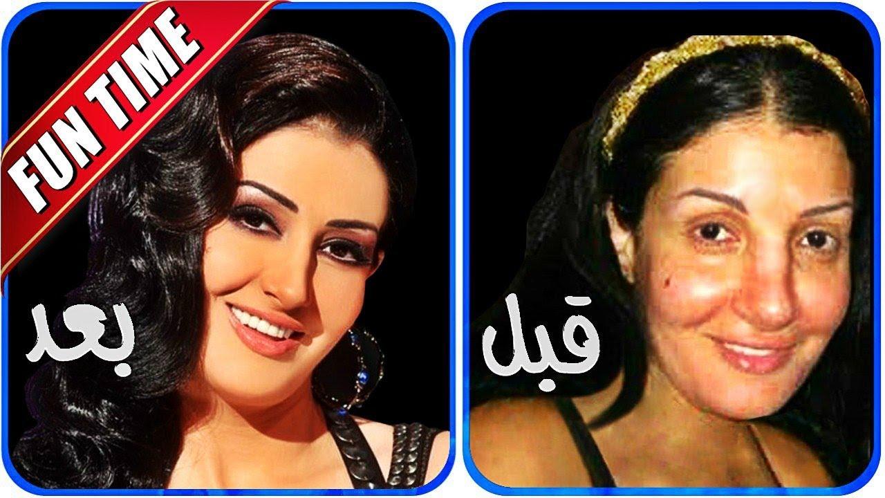 صور صور الممثلين قبل وبعد التجميل , عمليات التجميل للفنانات