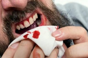 صور تفسير حلم خروج الدم من الاسنان , تفسير رؤية خروج دم من الاسنان في المنام