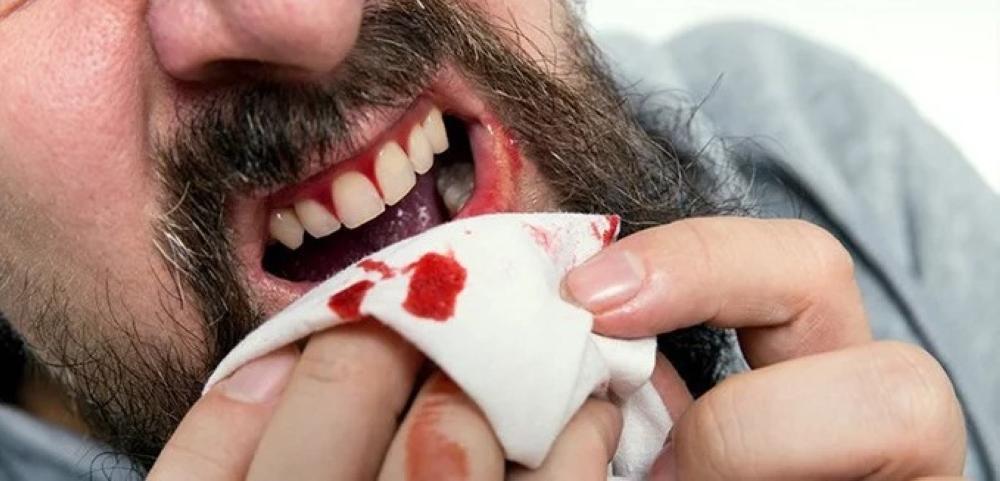 صورة تفسير حلم خروج الدم من الاسنان , تفسير رؤية خروج دم من الاسنان في المنام