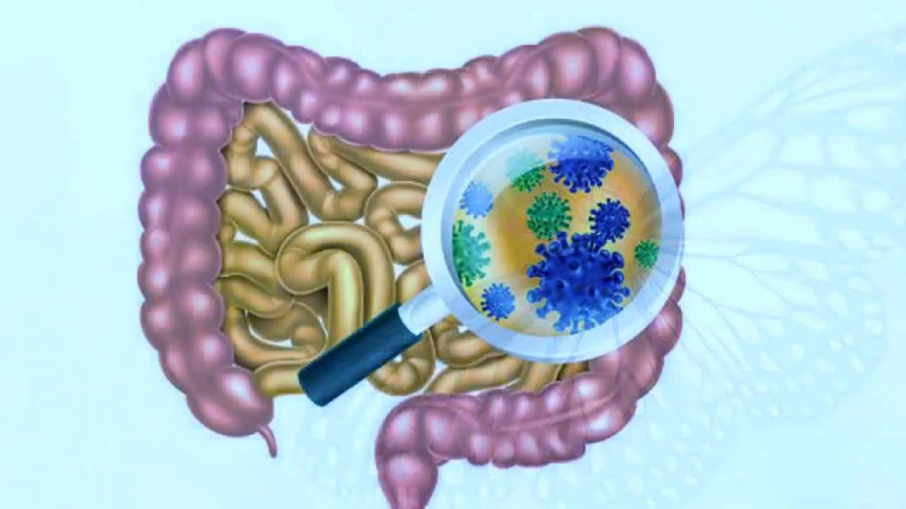 صورة خروج رائحة كريهة من المعدة , اسباب وعلاج وجود رائحة كريهة من المعدة