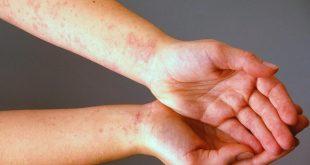 صور علاج تسلخات الجلد عند الكبار , تخلص من التسلخات بوصفة سحرية